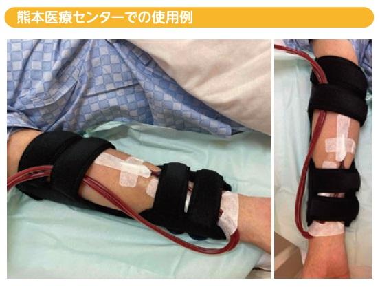 熊本医療センターでの使用例